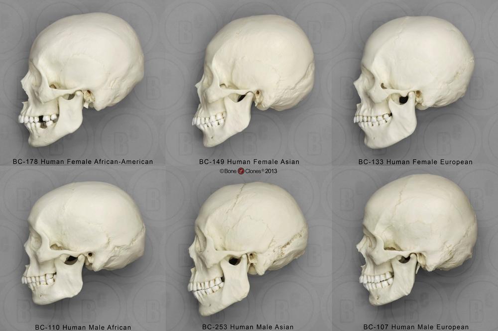 Cráneo humano - Lateral