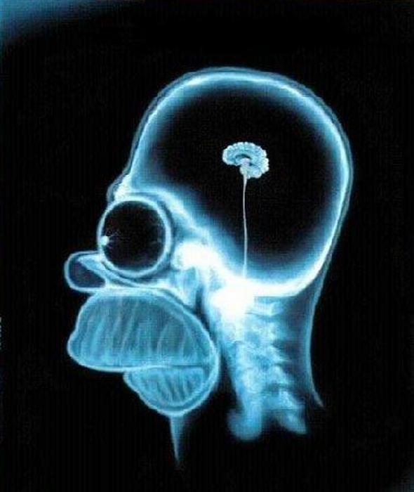 Homero X-Ray